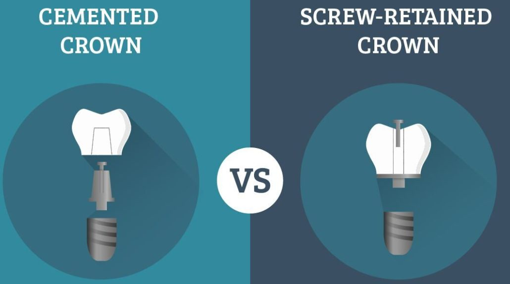 Screw Retained vs Cement Retained Implants